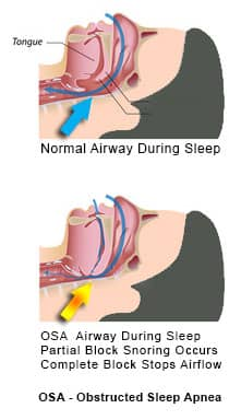 Obstructive Sleep Apnea - normal and blocked airflow